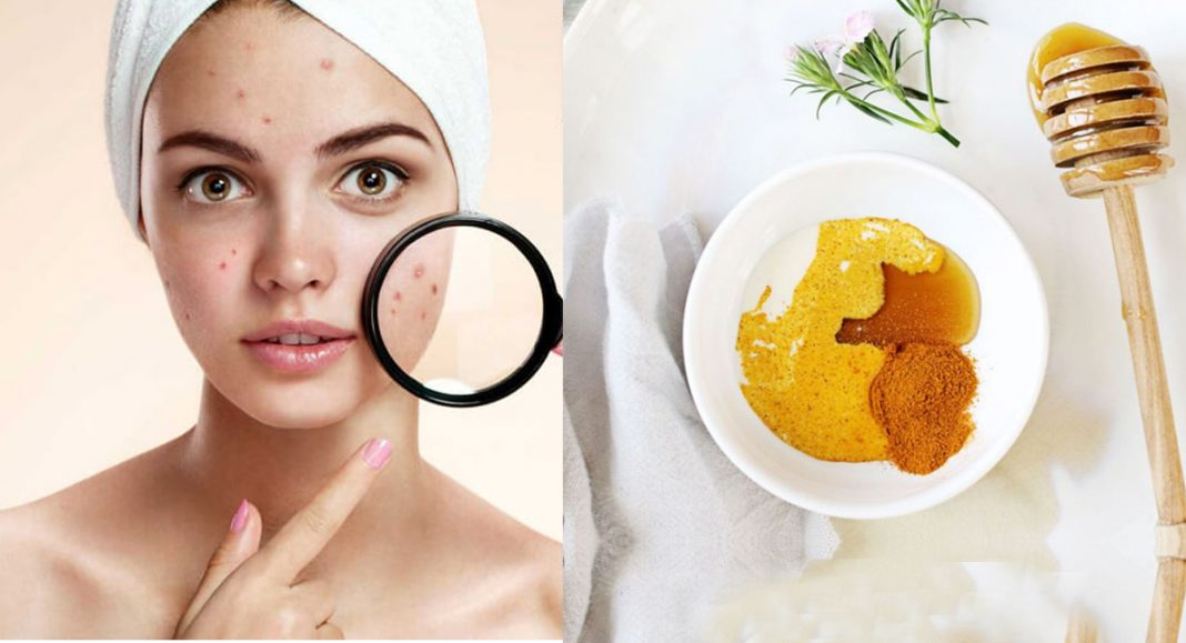 Top 10 Acne Home Remedies